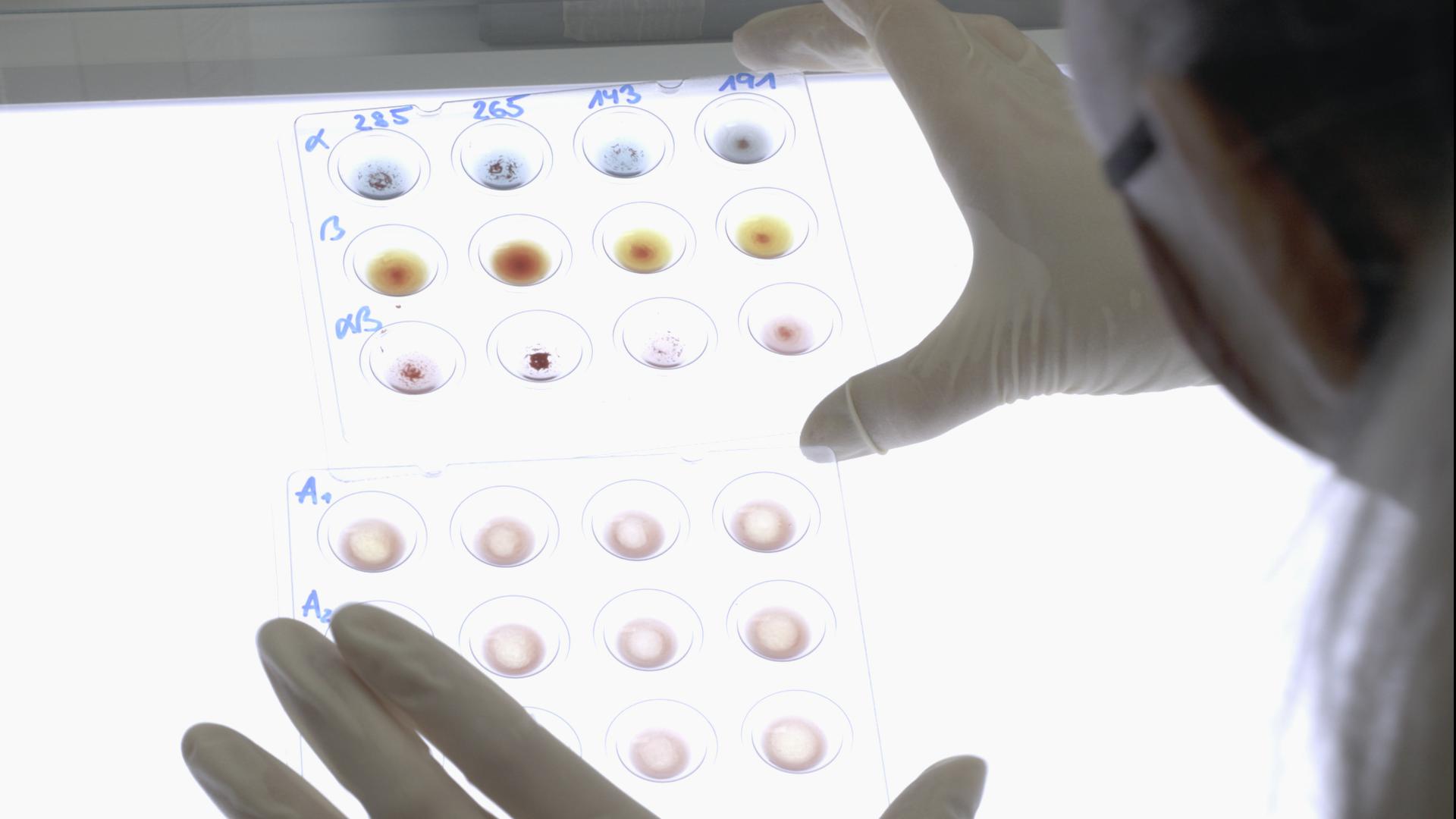 Blut wird im Labor beforscht