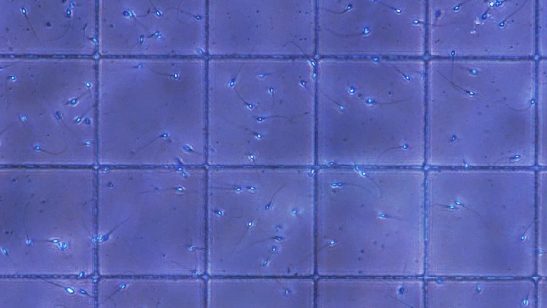 Ein Gitternetz unter dem Elektronenmikroskop hilft die bei der Bestimmung der Spermienzahl.
